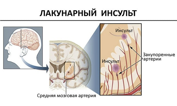 c33fba44362e7f41312ecc254dd46f6f - Lacunar stroke of the brain - what is it, treatment and prognosis